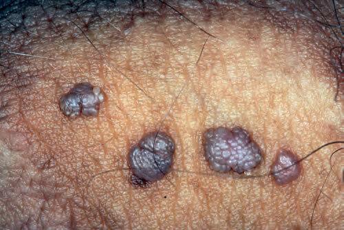 condiloame negi genitale endometrial cancer nccn guidelines