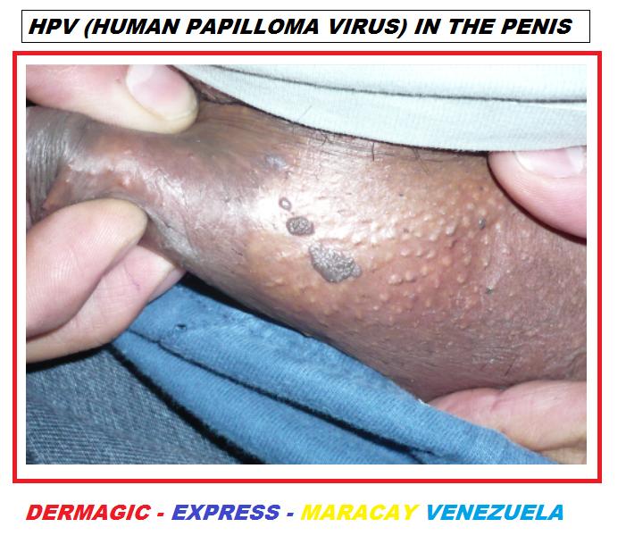gastric cancer type hpv virus gravid