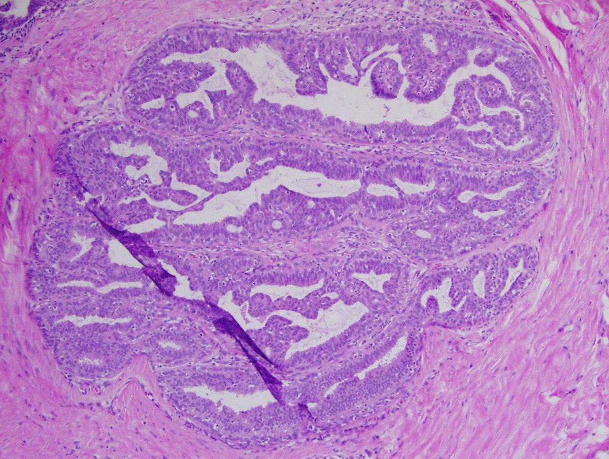 paraziți în proba de urină