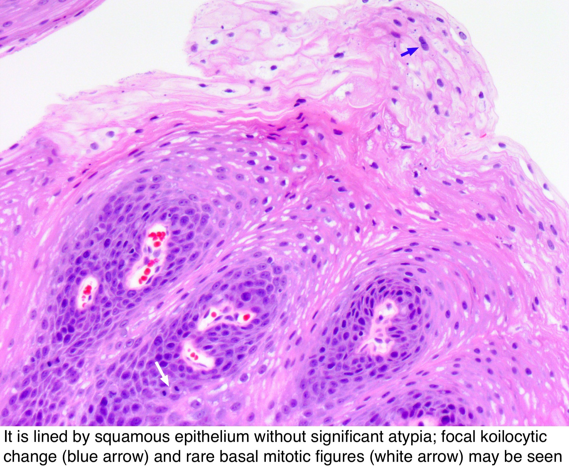 conjunctival squamous papilloma histology
