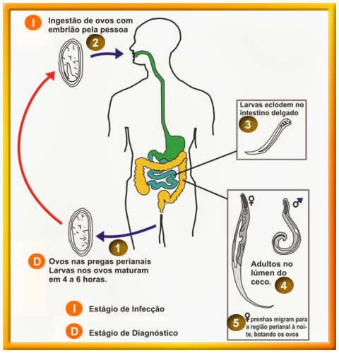prepararea parazitului helmifag