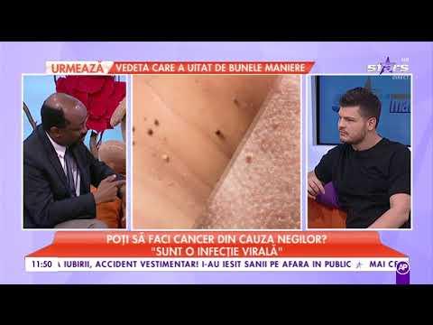 cum să tratăm papilomele stomacului medicamentul cu vierme este cel mai eficient