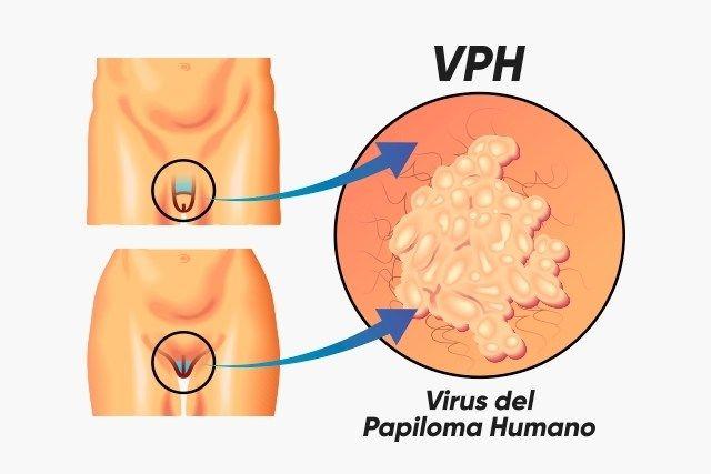 cancerul mamar pcn human papillomavirus kit
