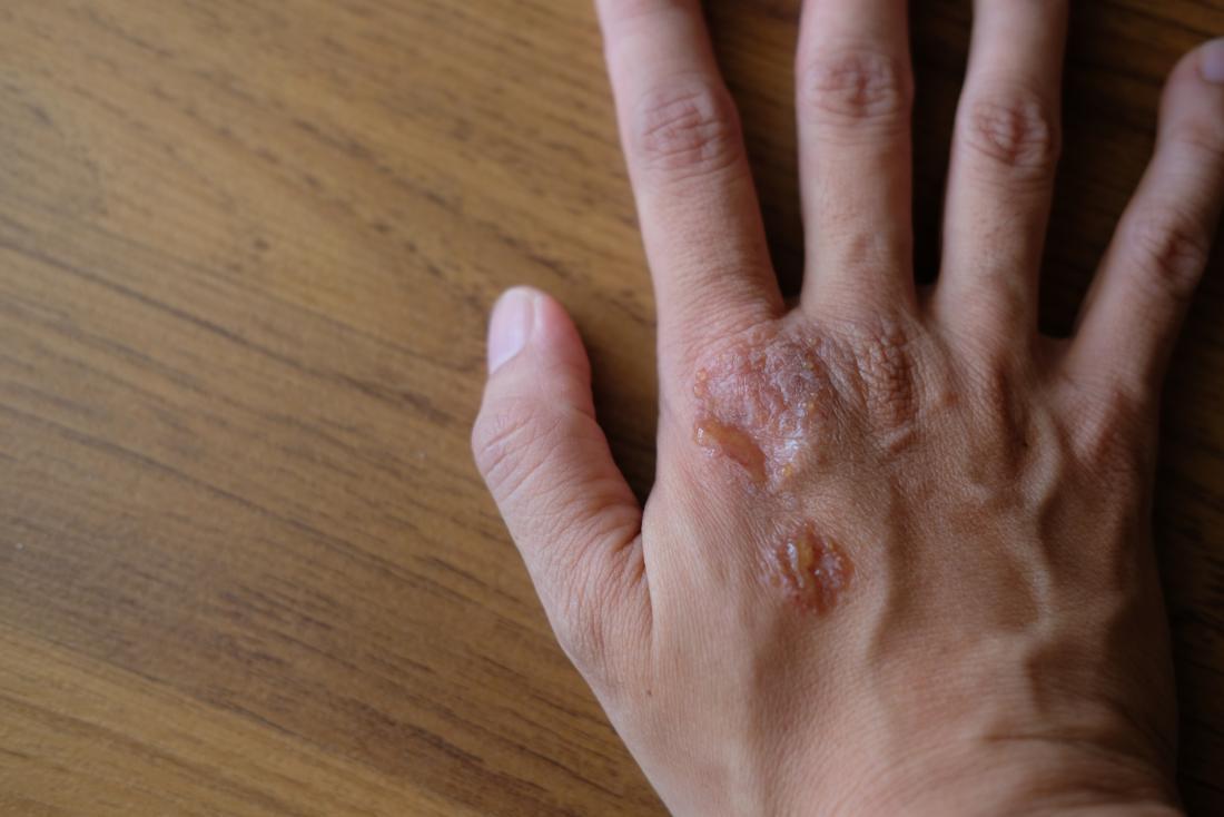 warts on hands sign of hiv tratament în Surgut pentru paraziți