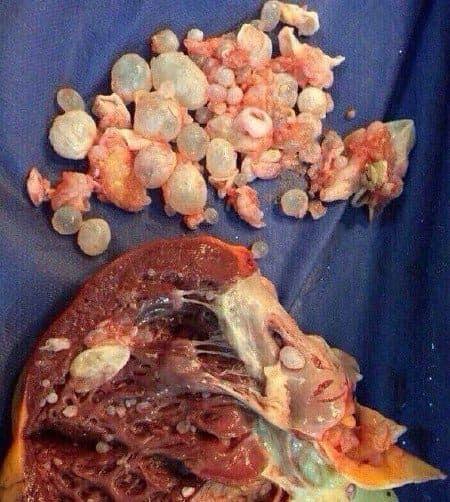 condiloame la femei ce este human papillomavirus infection while pregnant