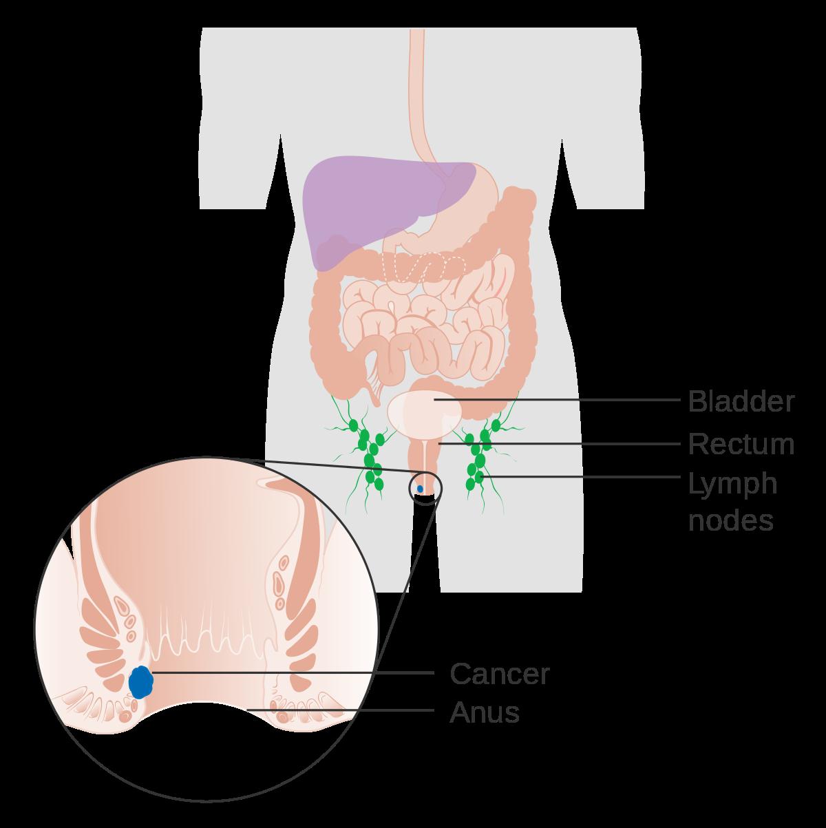 Cancer colon nivel 4