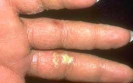 Dermatita atopica (eczema) | parcareotopeni24.ro