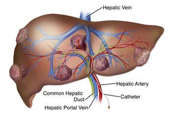 cancerul hepatic definitie ce este helmintiaza