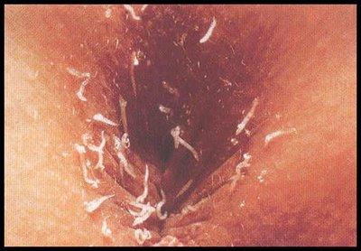 prevenirea pastilelor parazitare vierme medicament pe o tabletă