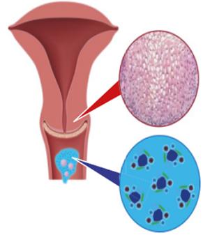 Human papillomavirus kezelese - Voi vindeca viermii
