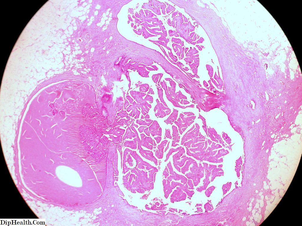 papilloma condotto al seno