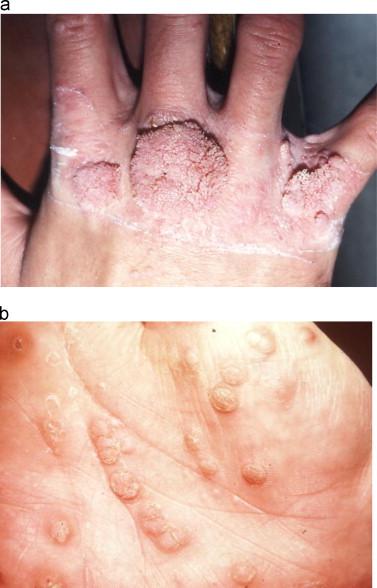 paraziții sunt simptome ale stomacului adult pinworm ce să facă
