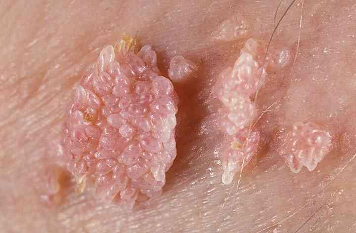 hpv virus lecenje detoxifiere cu picioarele in apa