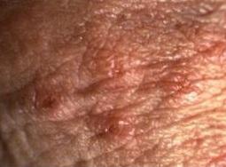 infecție cu negi genitale vierme rotunde în hering