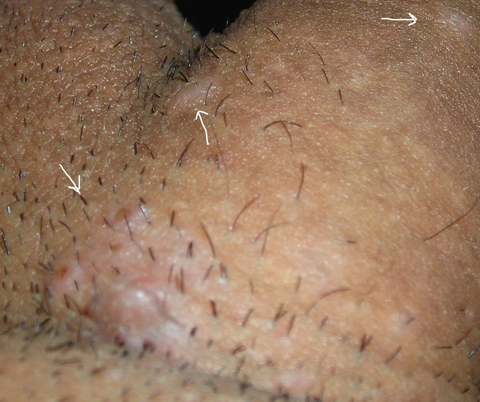 schistosomiasis treatment dosage hpv esophageal cancer prognosis