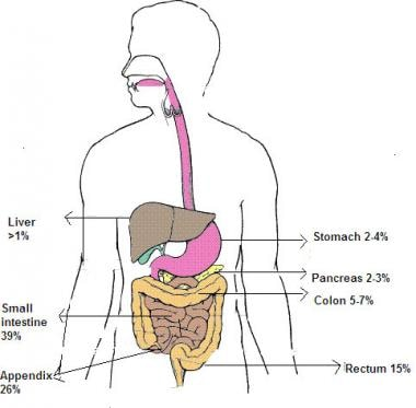neuroendocrine cancer symptoms stadiul pinworm