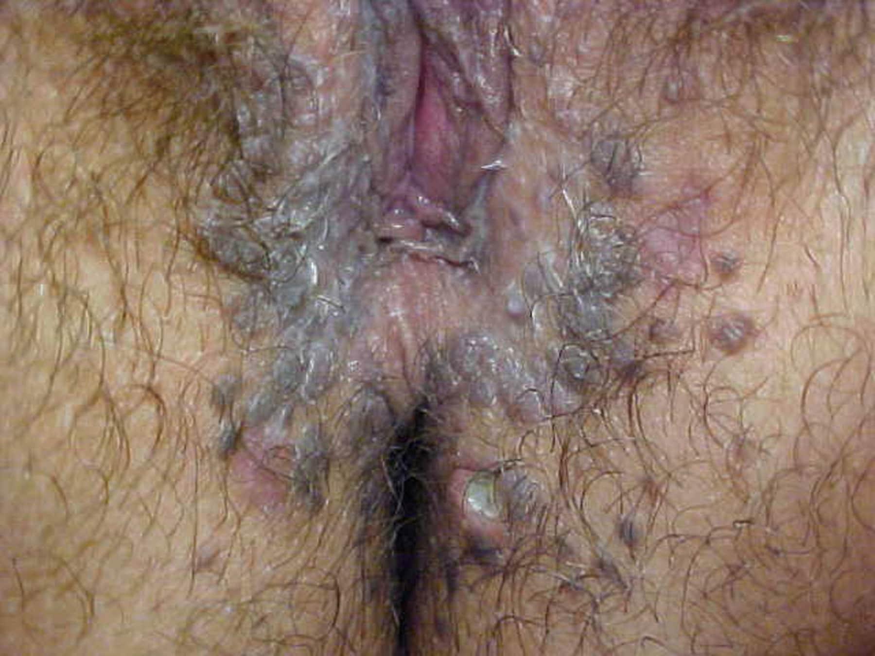 endometrial cancer uk papilom umflat