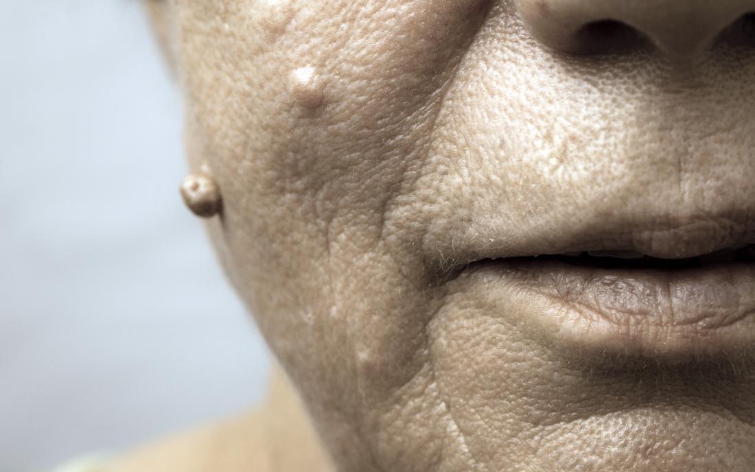 cell papilloma face)
