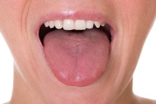 papilloma virus in bocca immagini algoritmul gardului de enterobioză