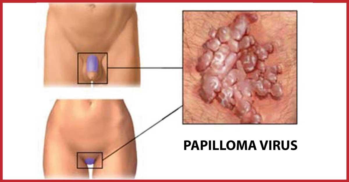 papilloma virus sintomi prurito