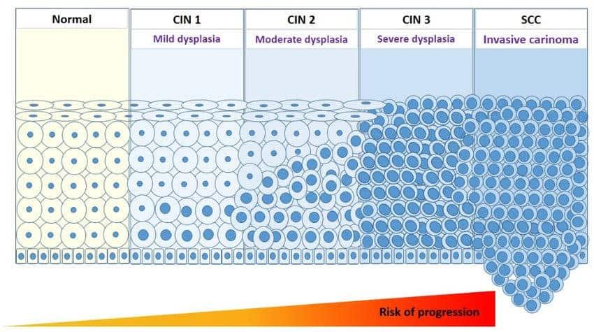 papillomavirus cin 3 hpv virus and dyskaryosis