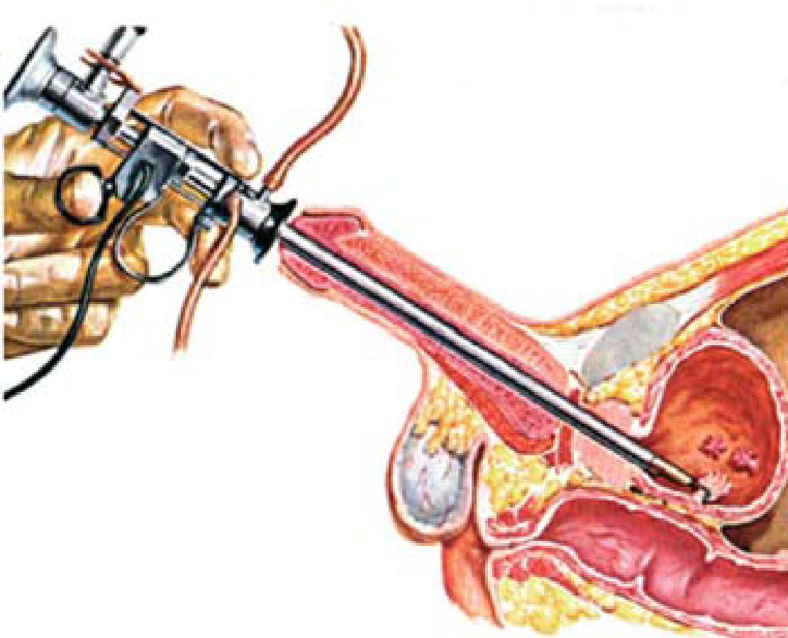papillomi alla vescica turb intervento di routine