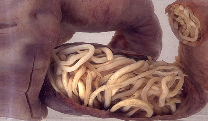 parazit u crevima