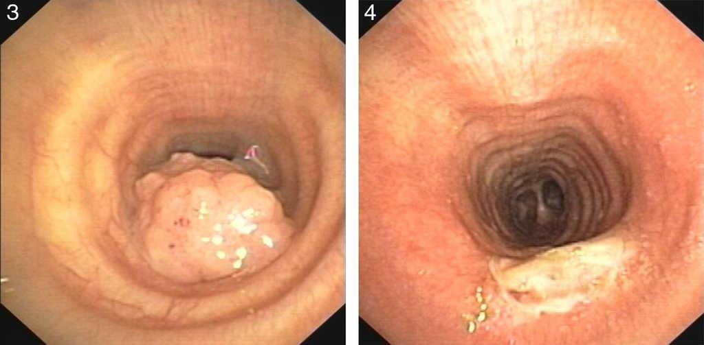 respiratory papillomatosis disease cancer malign creier
