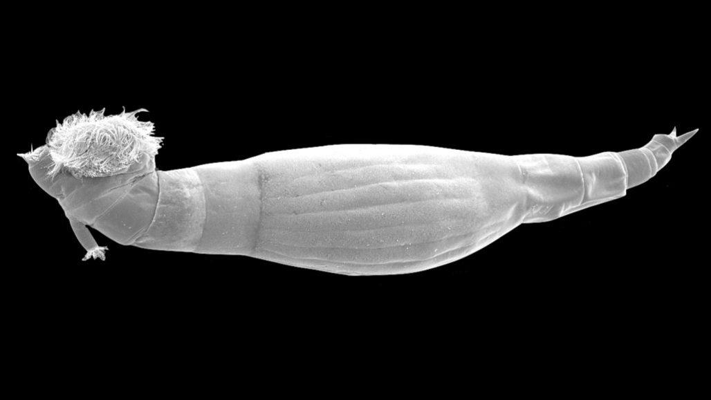 schistosomiasis worms