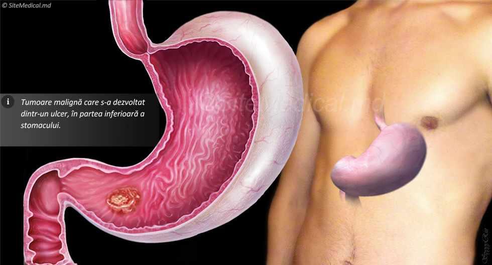 prevenirea și tratarea helmintelor din copilărie condilom pimafucin
