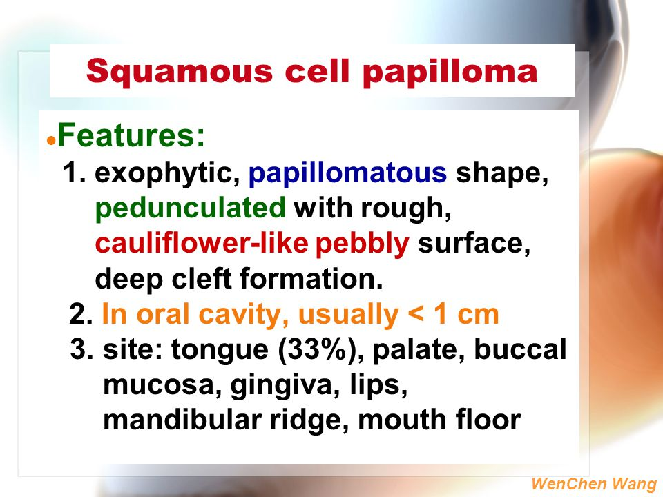 squamous cell papilloma slideshare