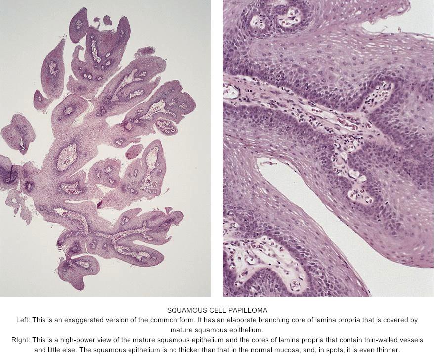 Squamous papilloma tongue pathology, Cand visezi paraziti intestinali - Papilloma tongue pathology