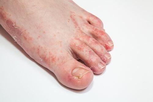 tratarea micozei degetelor de la picioare hpv virus zwanger
