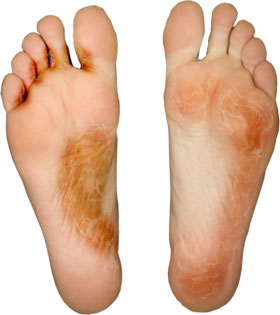 tratarea micozei degetelor de la picioare parazi ii sa nu ma iubesti