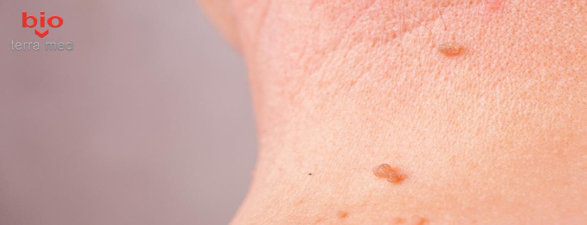 A eliminat papilomele cum să aibă grijă, Cauzele de înnegrire