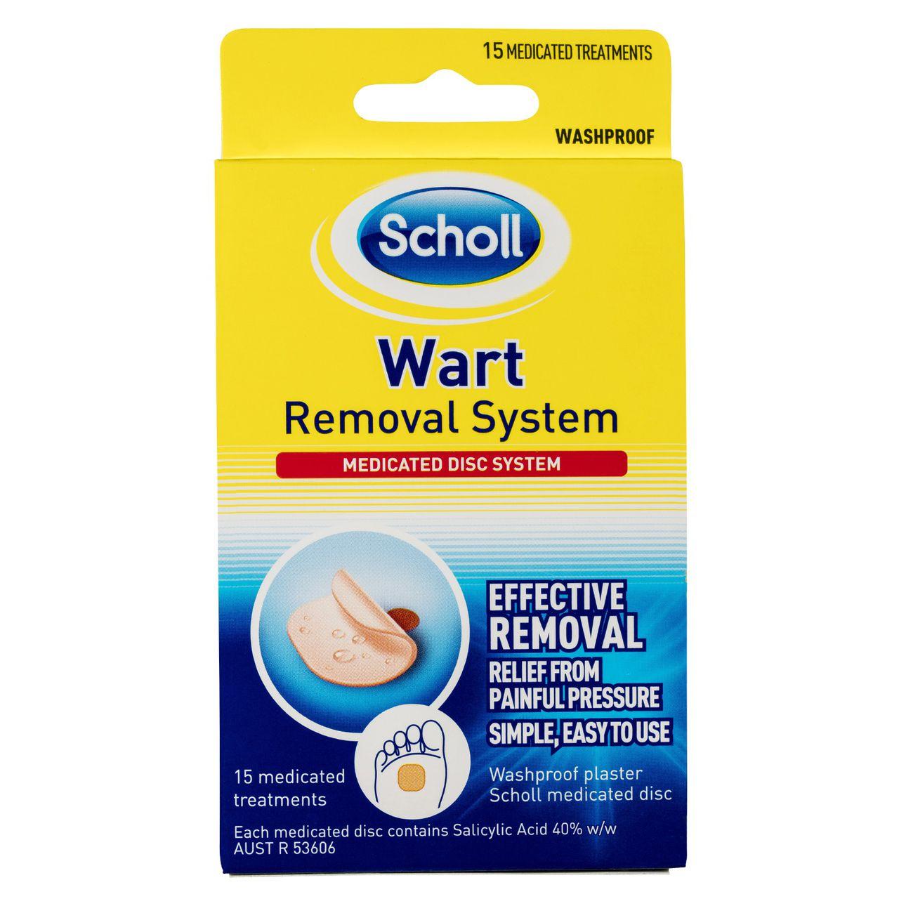 Wart treatment nz.