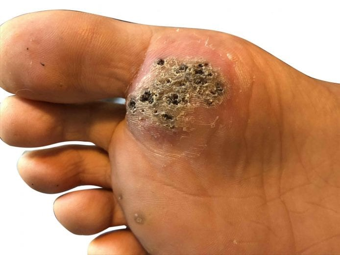 warts on hands that keep coming back