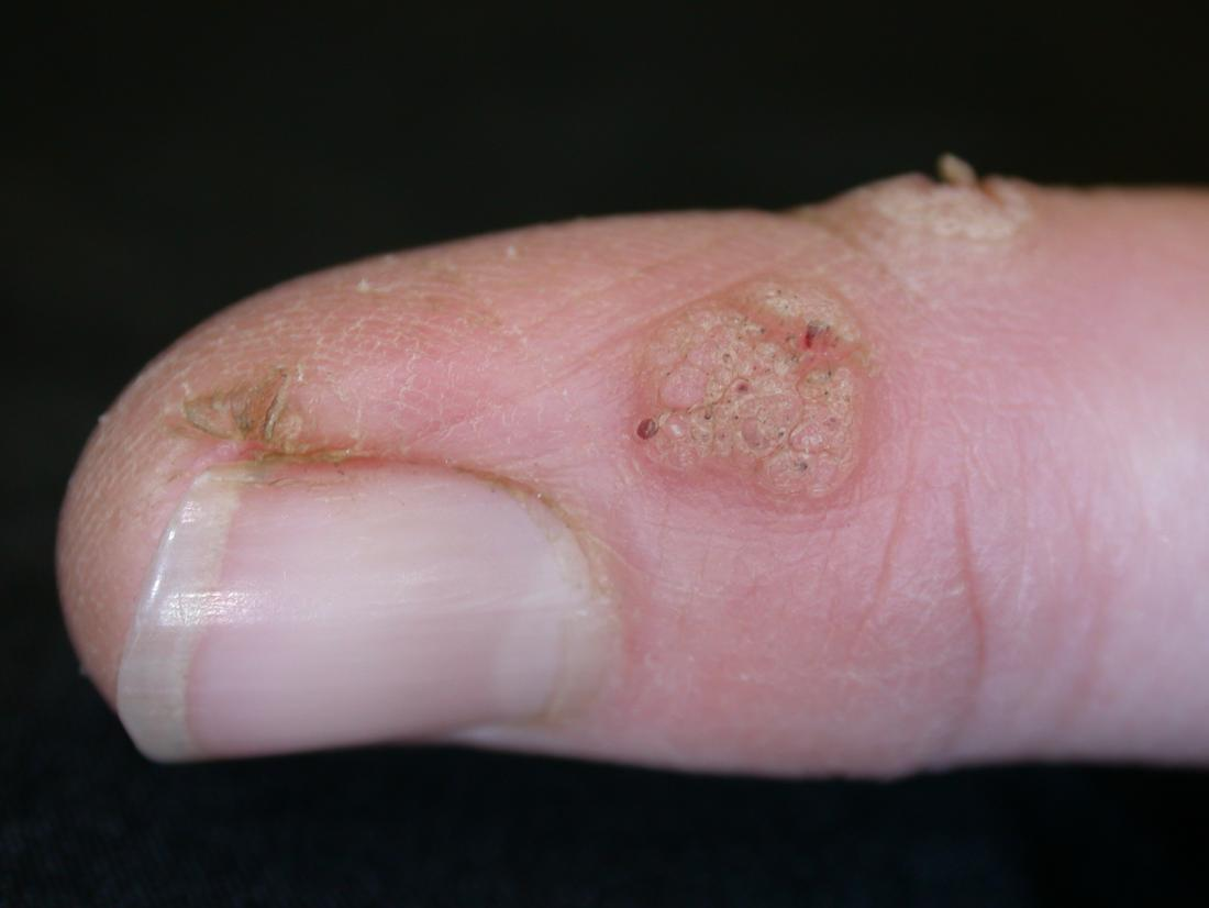 warts treatment on hands