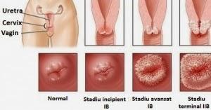 condiloame pe colul uterin ce este