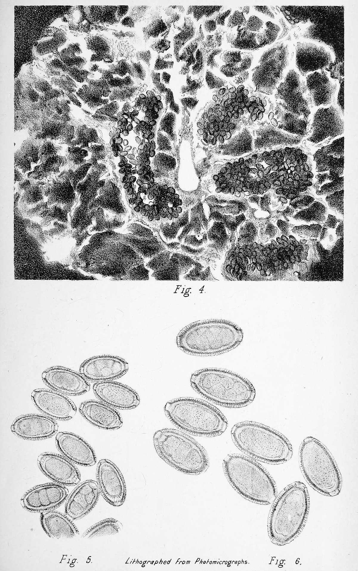 Cancer colon melena. Hemoragia digestivă inferioară – cauze, tratament