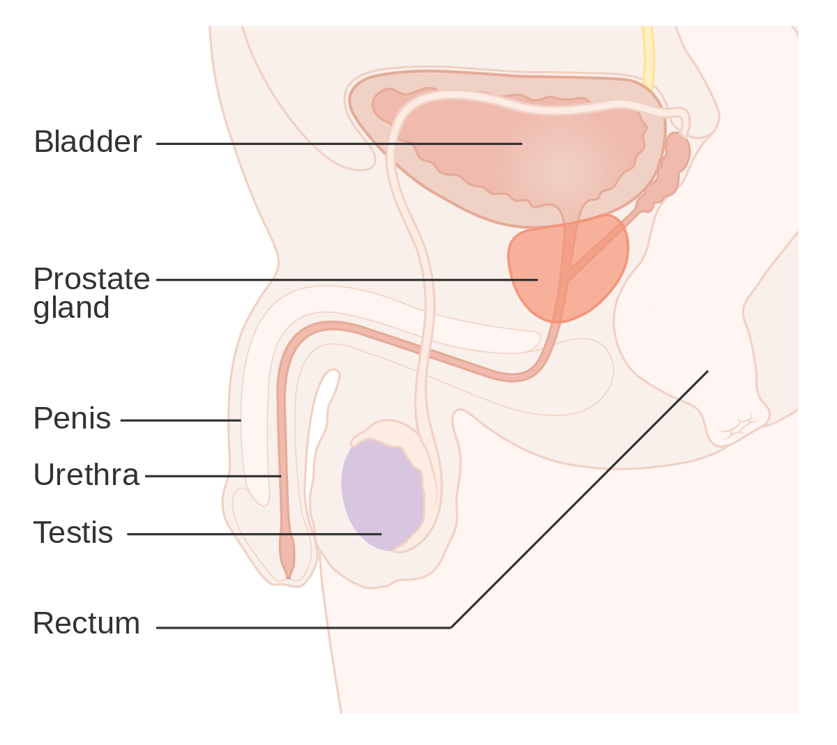 cancerul malign de prostata dacă pastilele parazite nu au ajutat