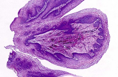papilloma of the urinary bladder