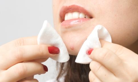 tratamentul acneei între degete papiloma virus hpv sintomas