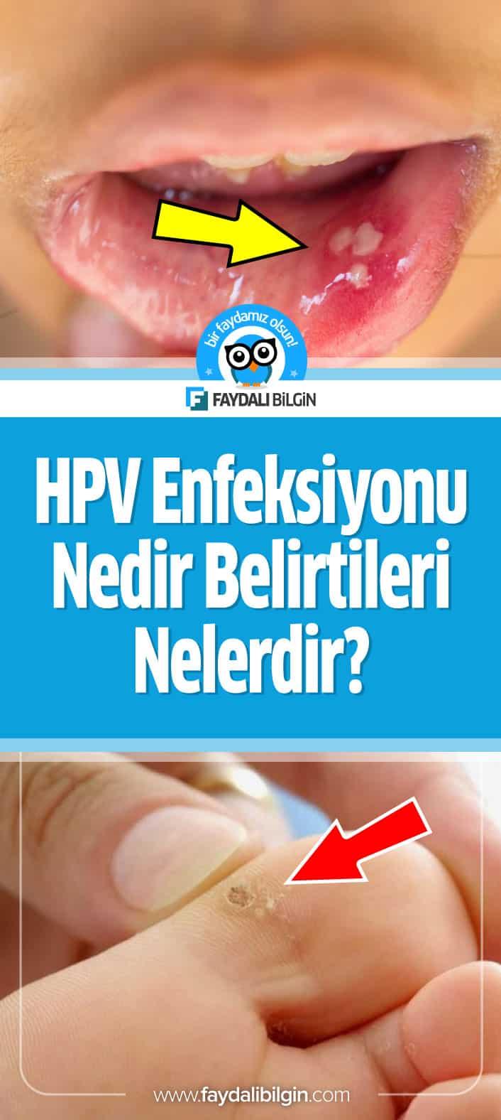 Hpv nedir tedavisi nelerdir. HPV virüsü nedir? laryngeal papillomatosis