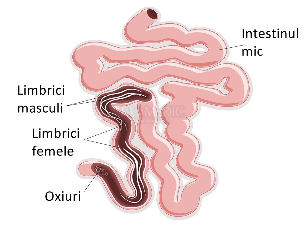 papilloma urotheliale opis medicamente antihelmintice pentru reacții adverse la oameni