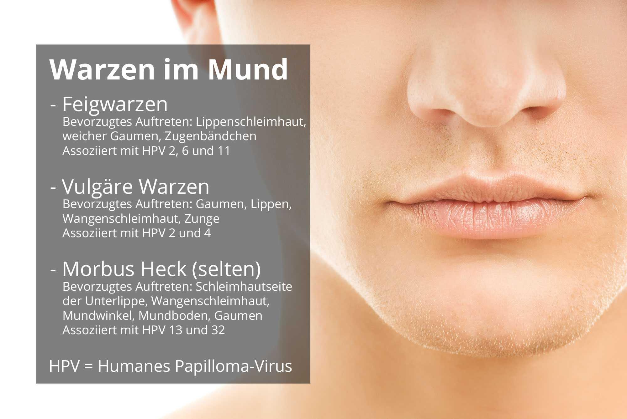 cel mai bun supliment de cultură pentru detoxifiere papiloame pe tratamentul feței