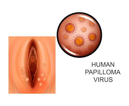 hpv virus u muza