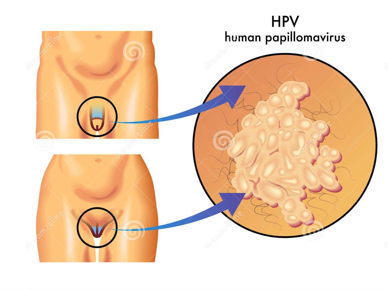 Sintomi del papilloma virus nell uomo - Sintomi nelluomo del papilloma virus - Category: DEFAULT