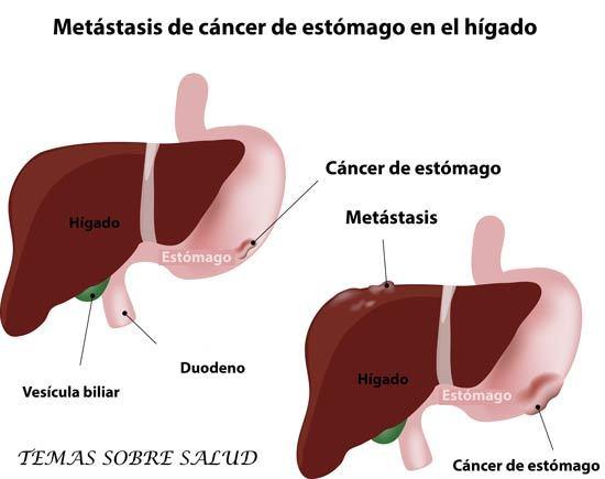 que es cancer benigno