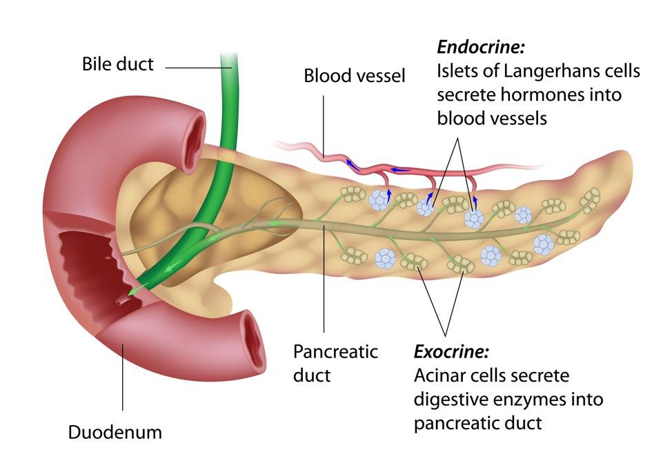 cancerul pancreatic exocrin